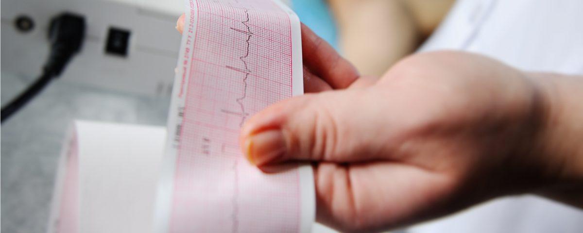 ¿Cómo tratar una taquicardia en casa?