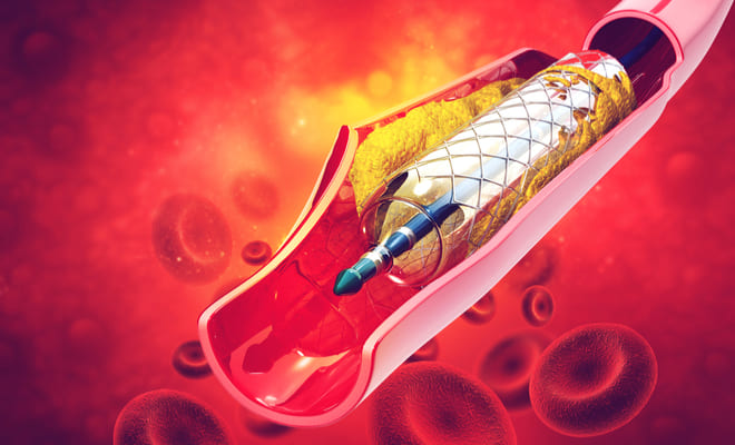 Conoce todo sobre la trombosis de stent