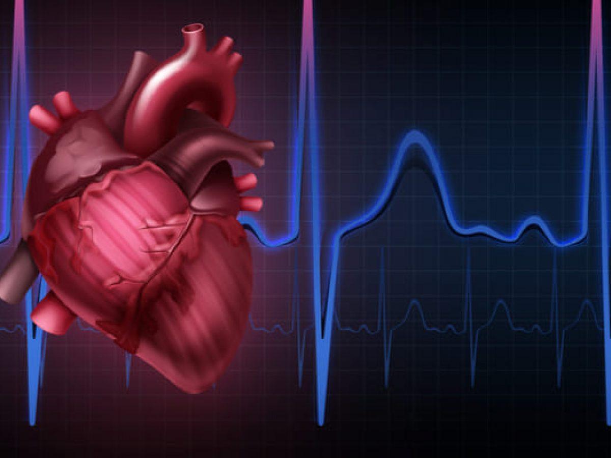 9 Penyakit Jantung