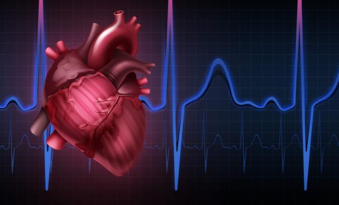 ¿Qué es una arritmia cardíaca?