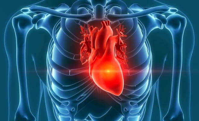 ¿Qué son los tumores cardíacos?