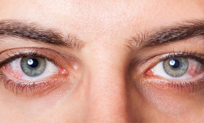 ¿Qué es un derrame ocular?