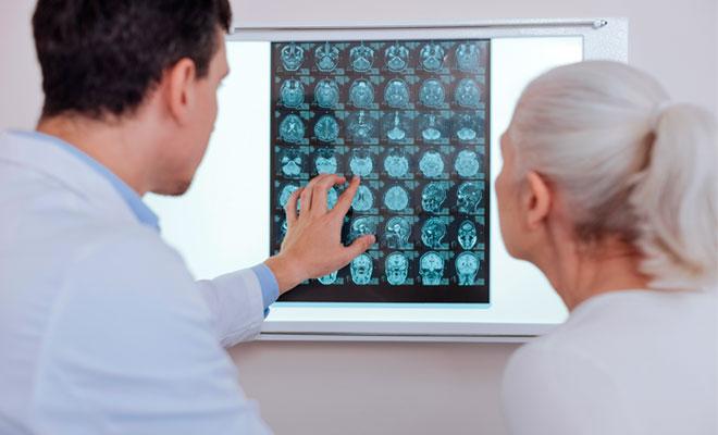 Tratamientos para los aneurismas cerebrales