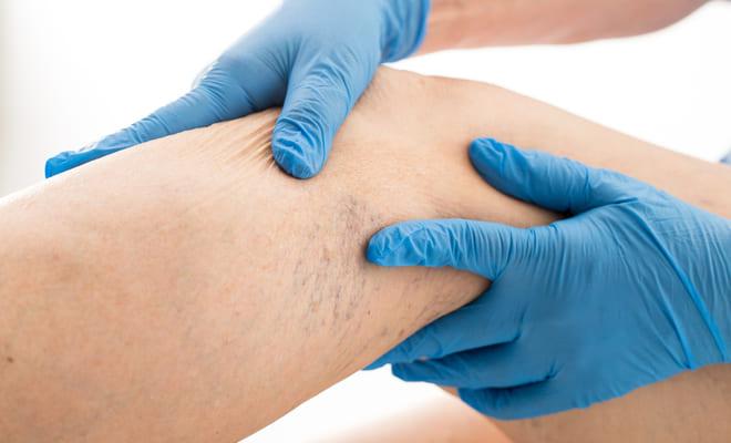 Las venas varicosas e insuficiencia venosa