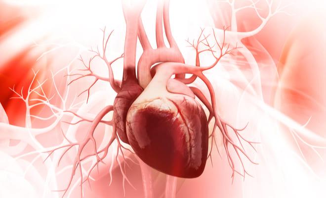 El extraño síndrome del Corazón en Criss-Cross