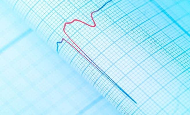 ¿Qué son las taquiarritmias ventriculares?