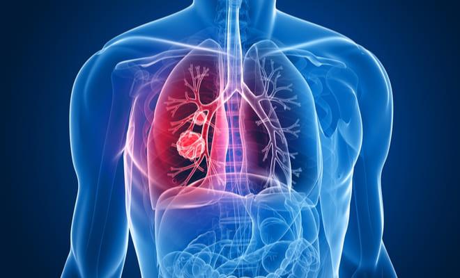 ¿Qué es un Tromboembolismo pulmonar?
