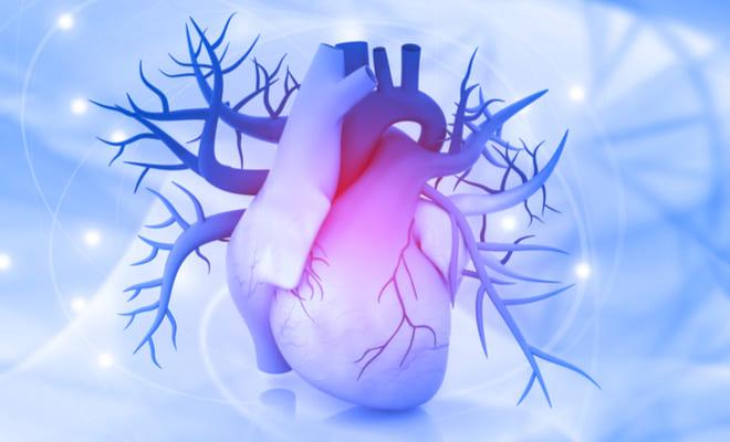 ¿Qué es un aneurisma de la aorta torácica?