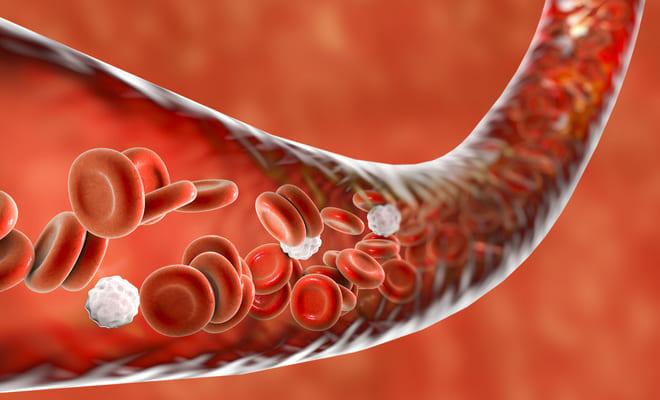¿Qué es la transposición de los grandes vasos sanguíneos?