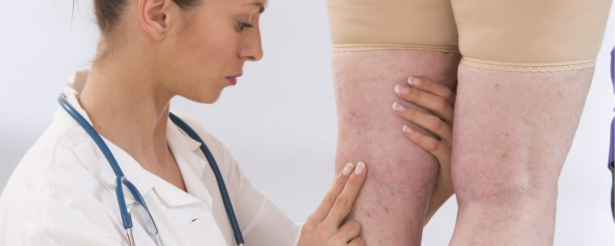 Diagnóstico y tratamiento para la trombosis