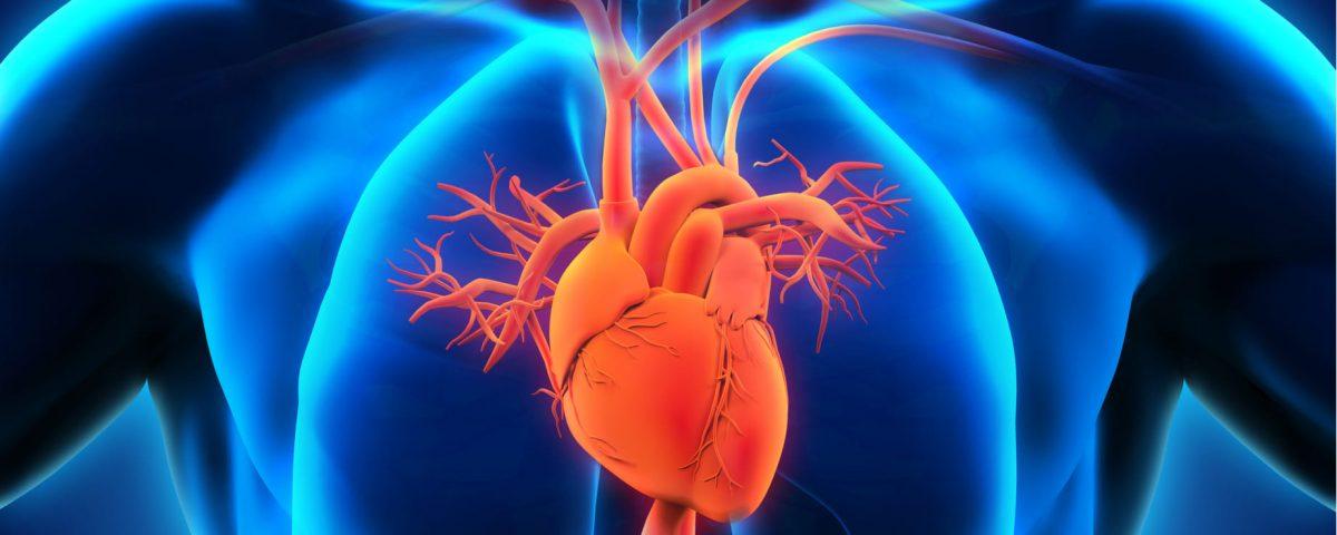 ¿Qué es la miocardiopatía dilatada?
