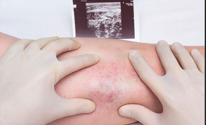 ¿Qué es la trombosis venosa profunda?