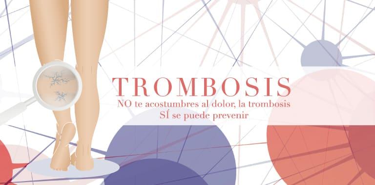 No te acostumbres al dolor, la trombosis si se puede prevenir