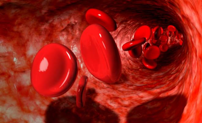 Conoce todo sobre la hemoglobinuria paroxística nocturna