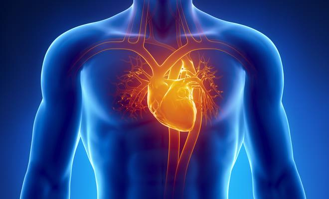 ¿Qué es el conducto arterial persistente?