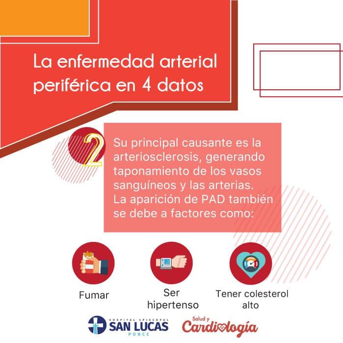 Datos interesantes sobre la enfermedad arterial periférica y como prevenirla