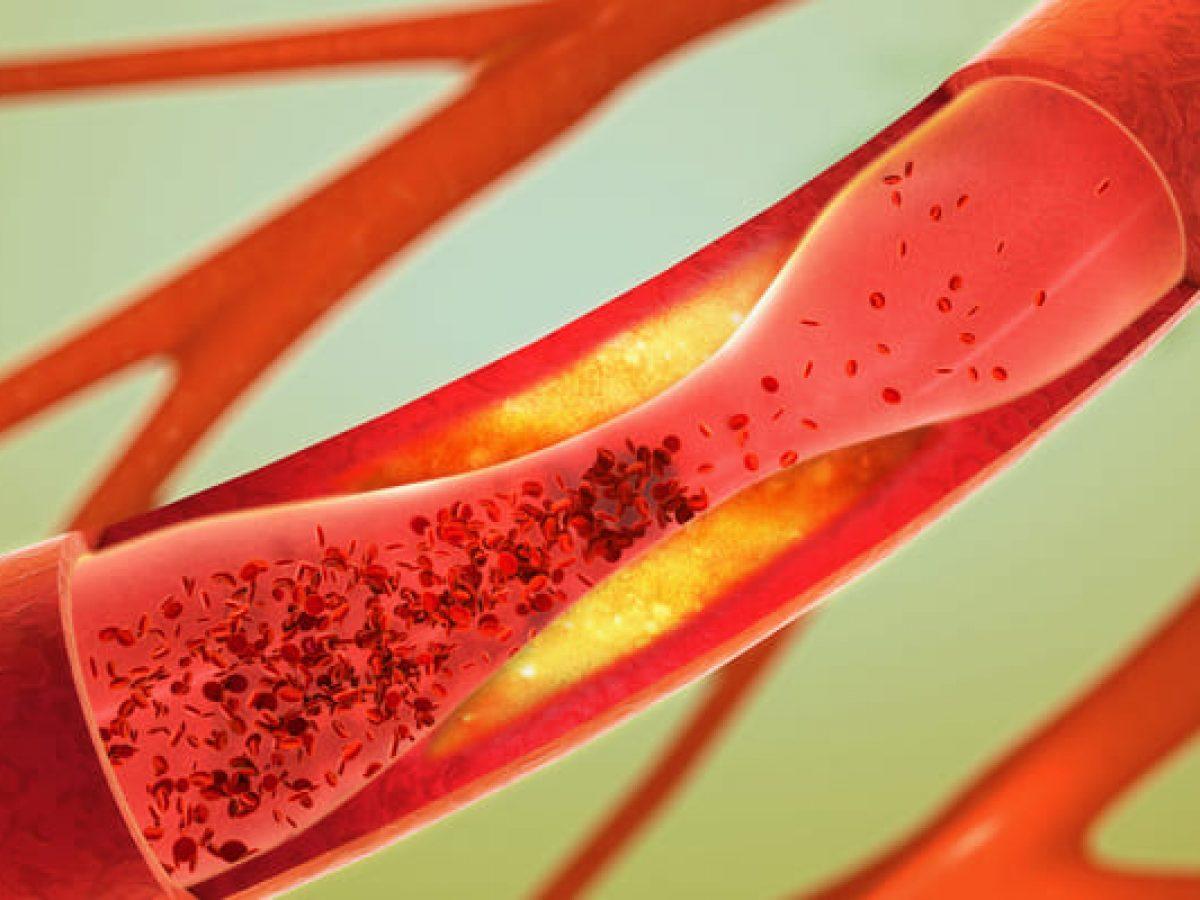 Enfermedad Arterial Periférica Qué Es Y A Quién Afecta