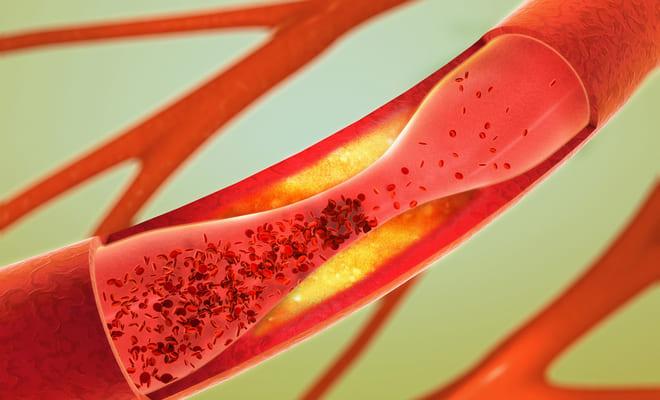 Enfermedad arterial periférica ¿qué es y a quién afecta?