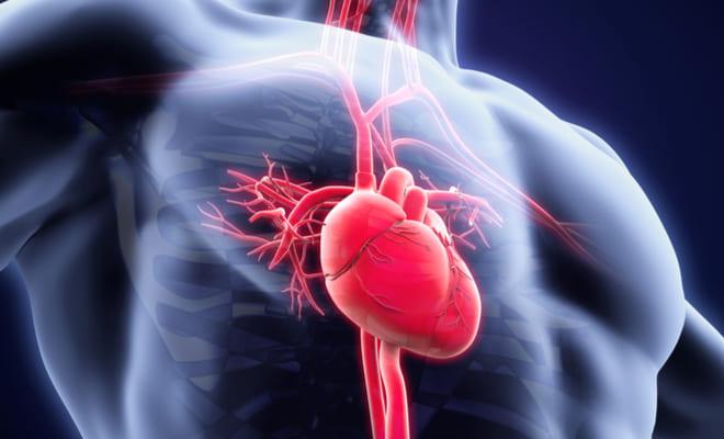 Qué tienen en común los infartos, los derrames y las amputaciones