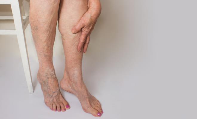 Señales de alerta que pueden indicar que está sufriendo de trombosis