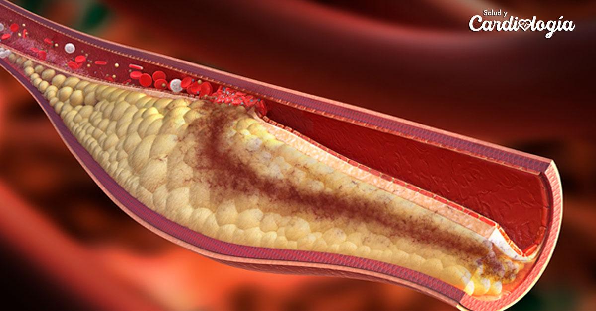 ¿Qué es la arteriosclerosis? | Revista Salud y Cardiología