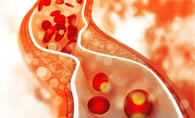 ¿Qué es la fístula arteriovenosa?