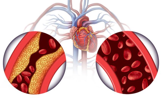 ¿Qué es la hipertrigliceridemia?