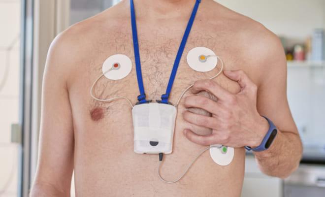 Electrocardiografía ambulatoria: examen para analizar el ritmo cardíaco
