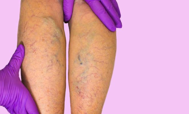Insuficiencia venosa: causas, síntomas y tratamientos