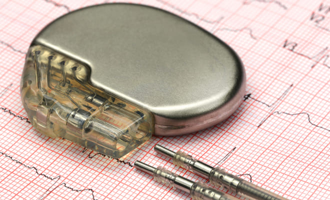 Patentan marcapasos que funciona con la energía de los latidos cardíacos