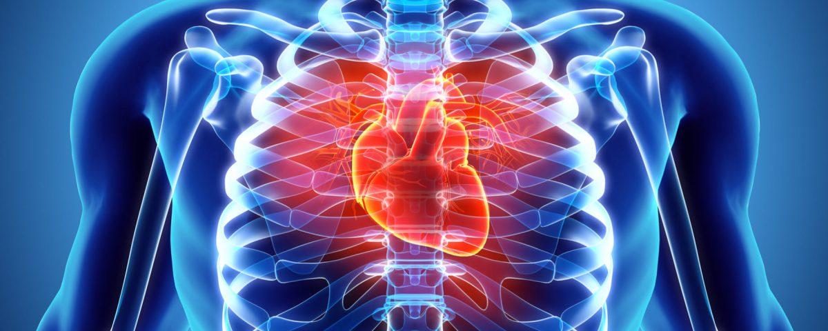 Displasia ventricular derecha arritmogénica: síntomas, diagnóstico y tratamiento