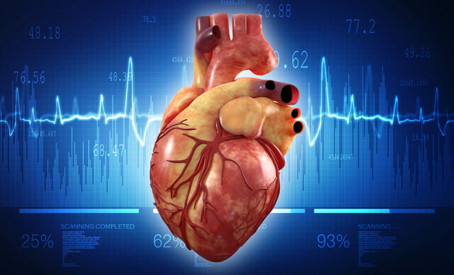 ¿Qué es la taquicardia supraventricular?