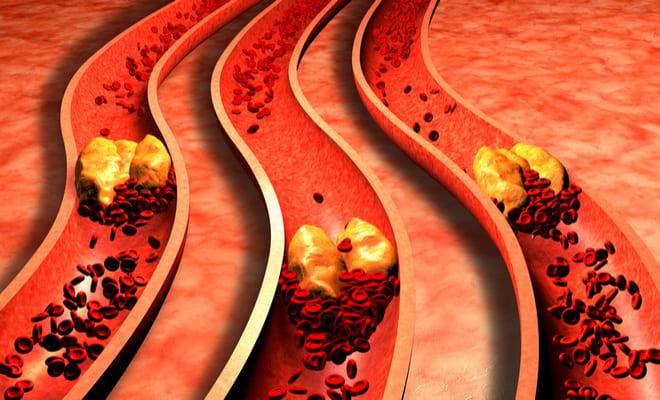 Síndrome coronario agudo: ¿qué enfermedades lo componen?