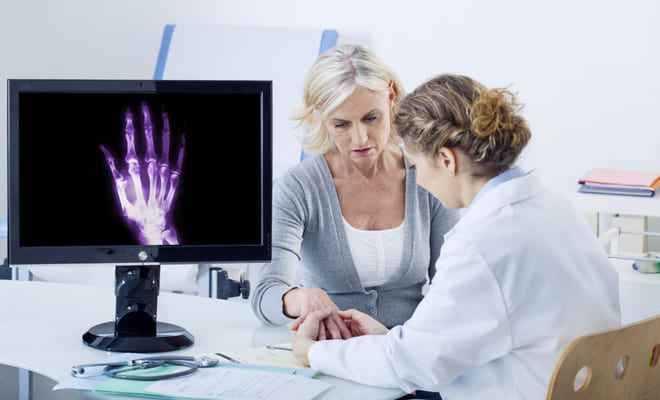 Reducir síntomas de la artritis reumatoide evitaría el riesgo cardiovascular
