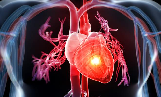 Cardiopatía coronaria: causas, síntomas, tratamientos