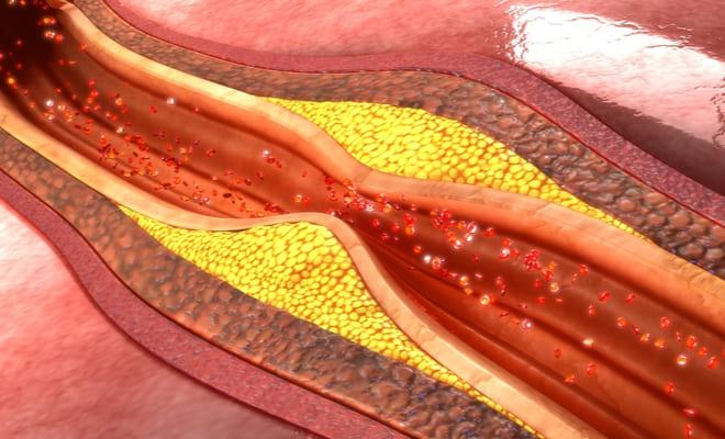 Lo que debes saber sobre el colesterol