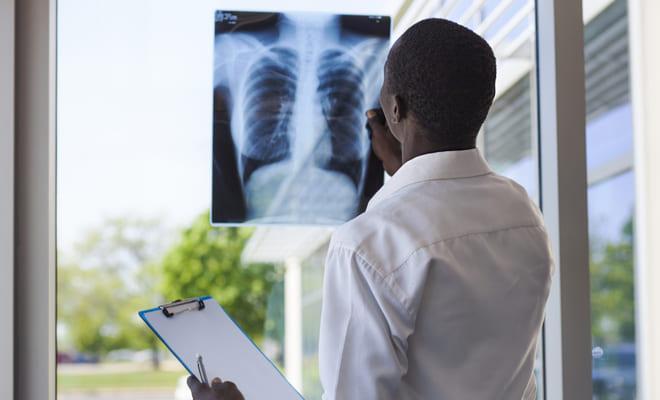paciente embolia pulmonar