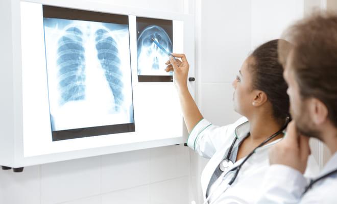 Evalúan tratamiento de pacientes con edema pulmonar cardiogénico hipertensivo