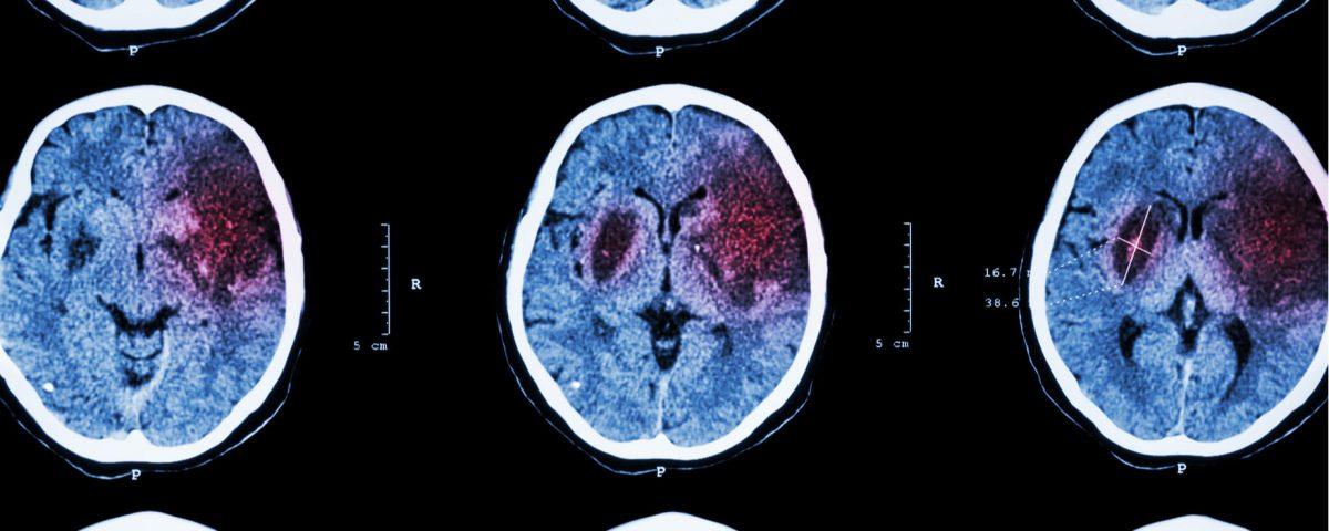 Tener muy bajo el colesterol aumentaría el riesgo de accidente cerebrovascular