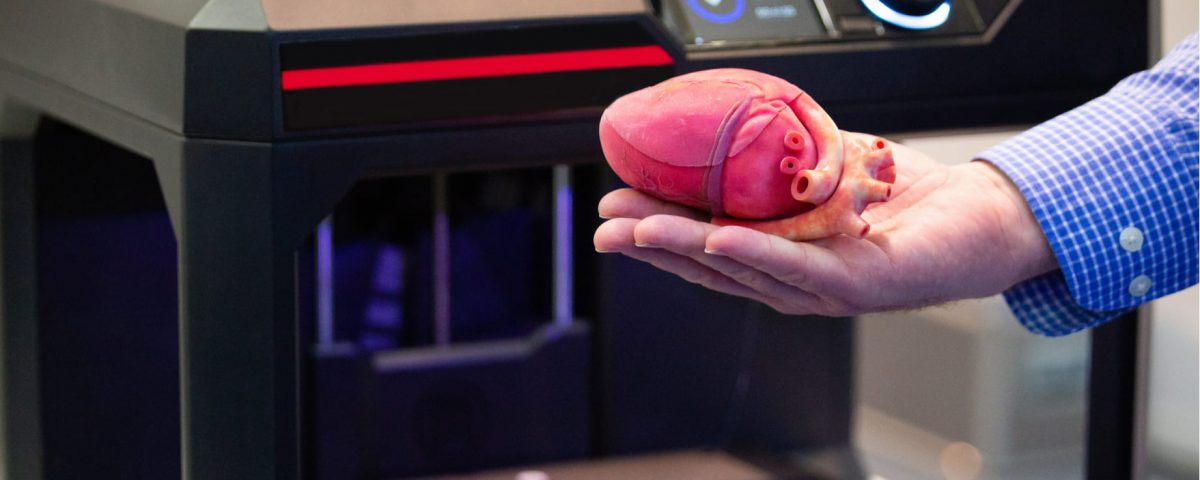 Corazones artificiales: la esperanza para quienes esperan un corazón nuevo
