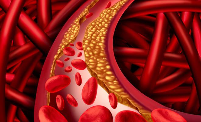 Enfermedad arterial periférica: una patología tan mortal como el cáncer