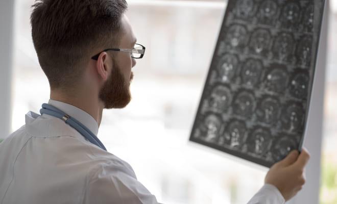 Desarrollan técnica no invasiva para recuperarse tras un derrame cerebral