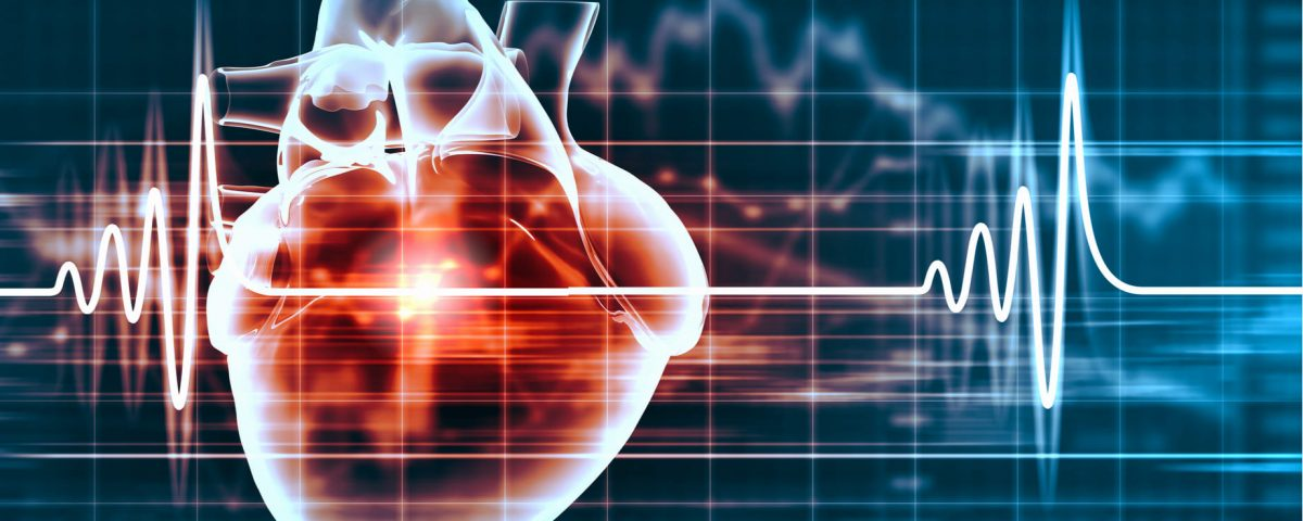 Taquicardia supraventricular: todo lo que debes saber
