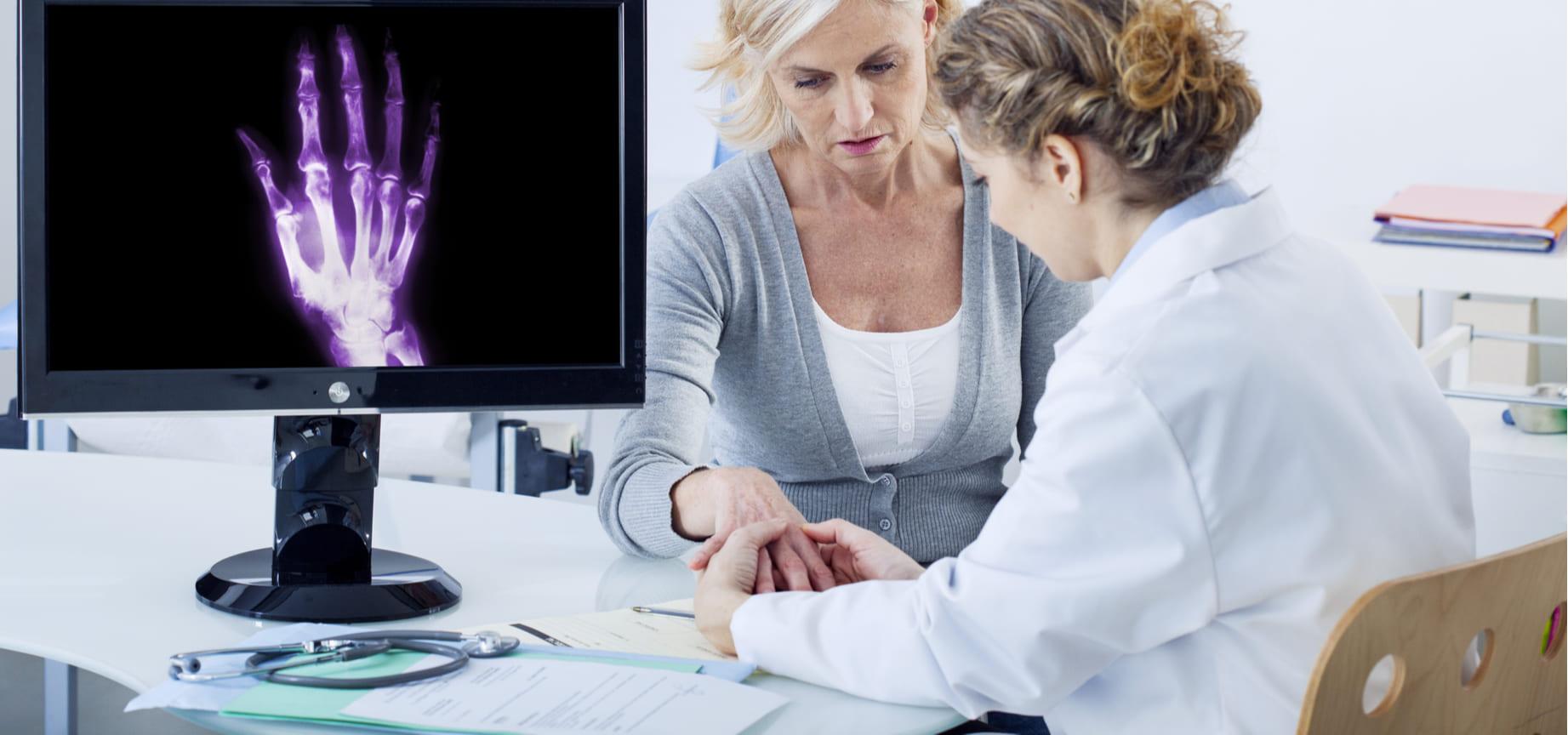 Personas con osteoartritis tendrían mayor mortalidad cardiovascular
