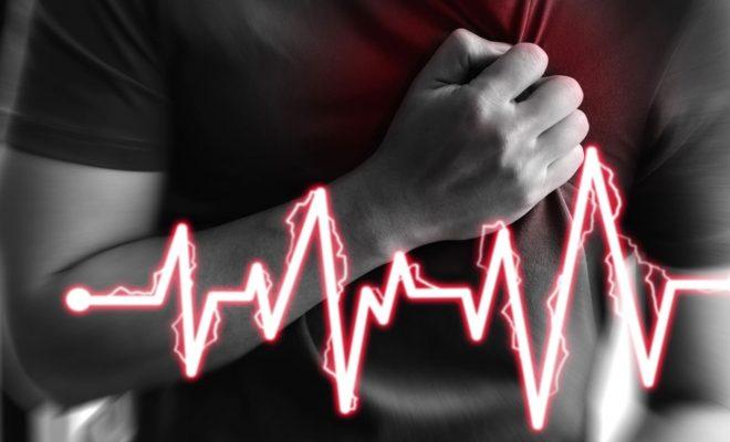 Fibrilación atrial: causas, prevención, y tratamiento